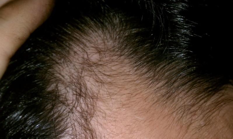 Propecia hair regrowth at temples